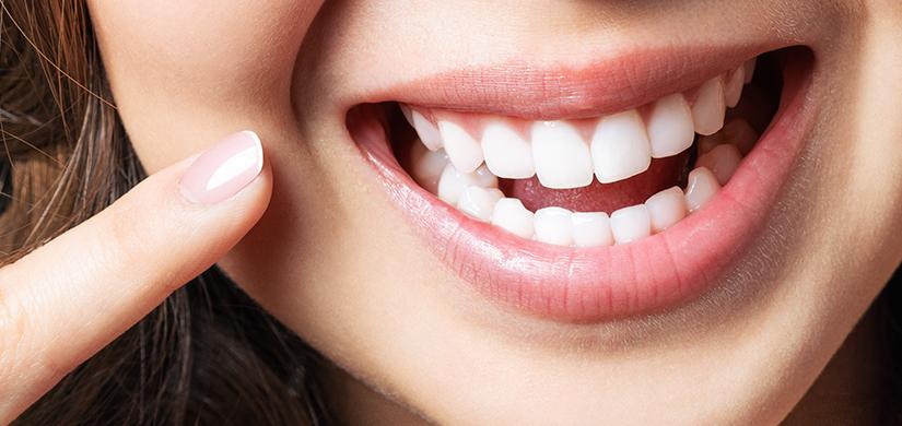 Gateway smile - teeth whiting